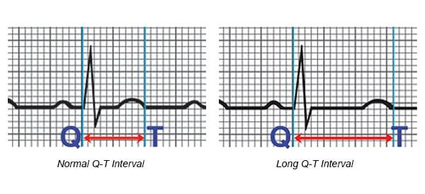 Arrhythmia: Long Q-T Syndrome