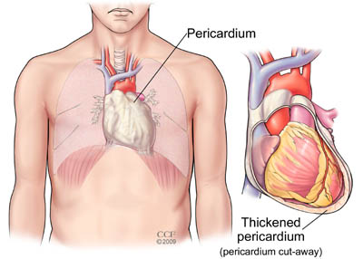 Pericardiectomy Cleveland Clinic