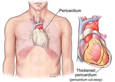 How to Treat Pericarditis