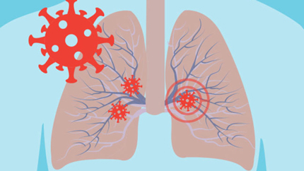 Illustration of lungs and COVID-19 virus