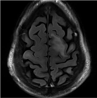 Figure 1 – Typical MRI findings of PML
