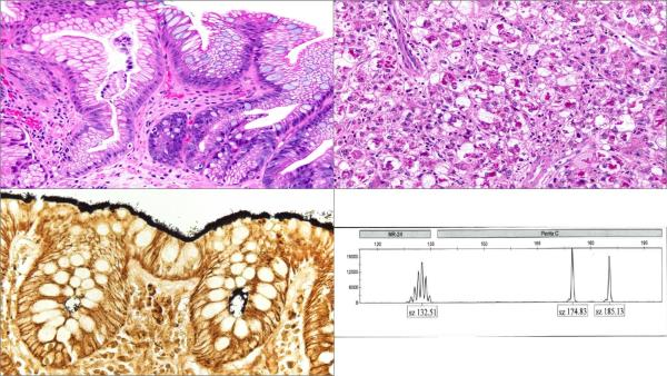 Gastrointestinal (GI), Hepatic and Pancreaticobiliary