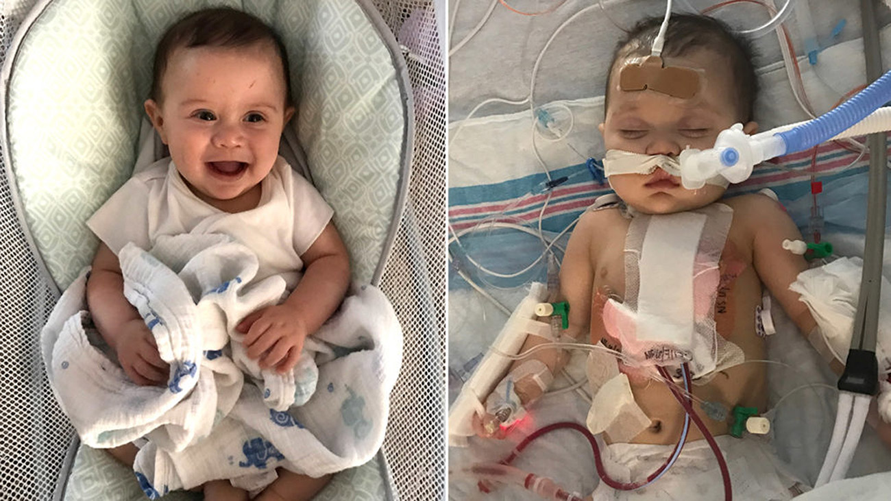 Jeremiah Powers had open-heart surgery at Cleveland Clinic Children's to repair a hole in the lower chambers of the heart.