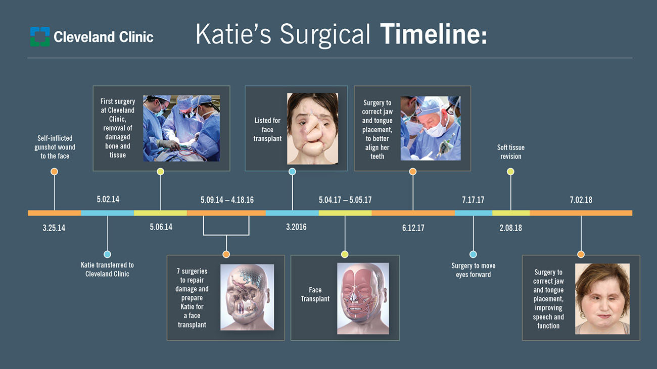 Katie endured more than 17 surgeries at Cleveland Clinic. (Courtesy: Cleveland Clinic)