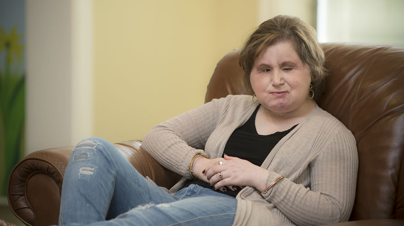 Road to Recovery: Woman is Youngest Patient in United States to Receive Face Transplant