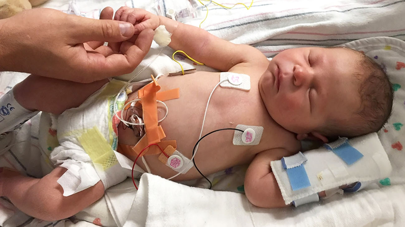 Doctors diagnosed William Reynolds with Pearson syndrome at 2 months old.
