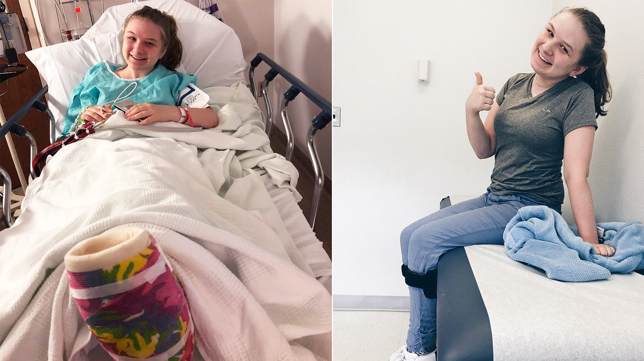 Erin Black underwent two foot reconstructions at Cleveland Clinic, the first in August 2017 and the second June 2018. (Courtesy: Erin Black)