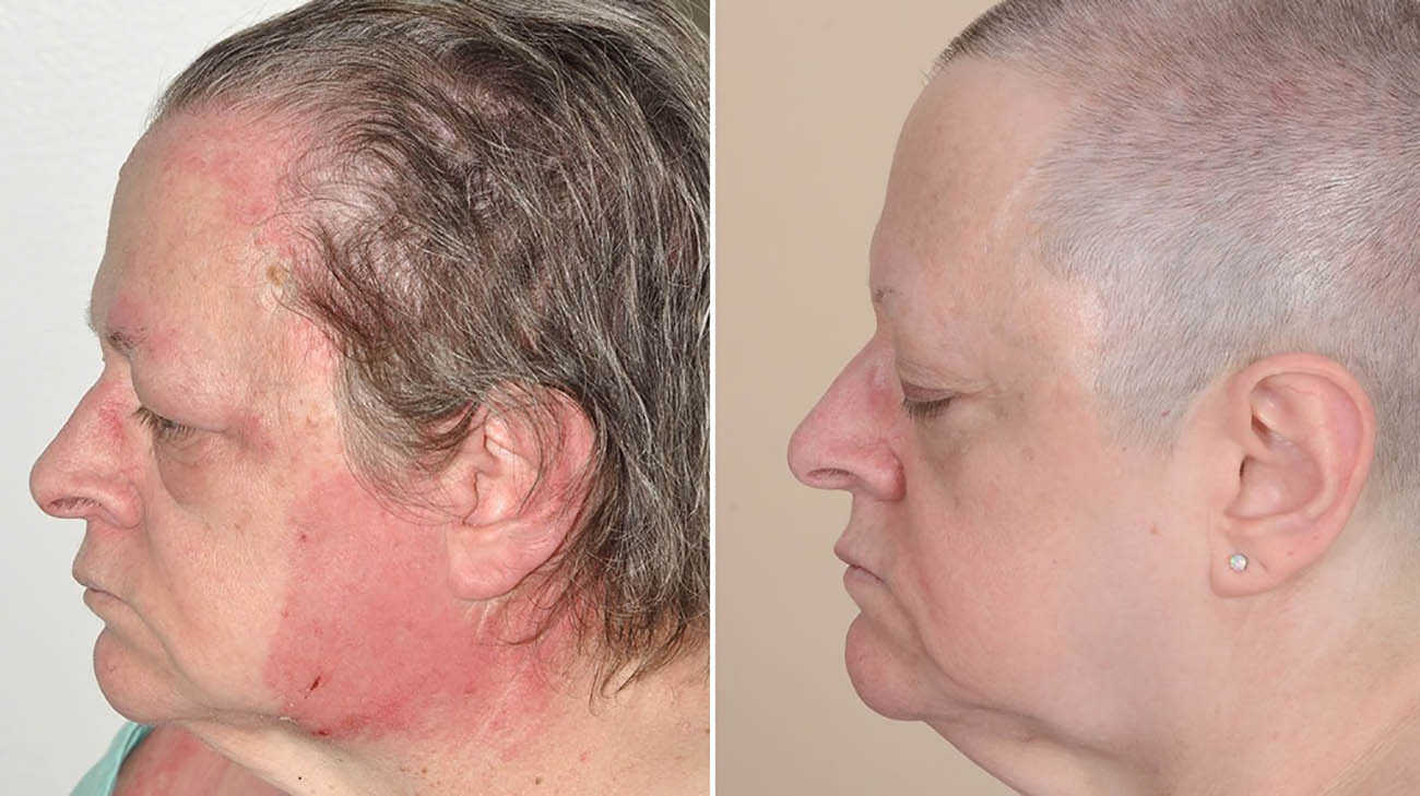 Cleveland Clinic patient with classic dermatomyositis skin condition.