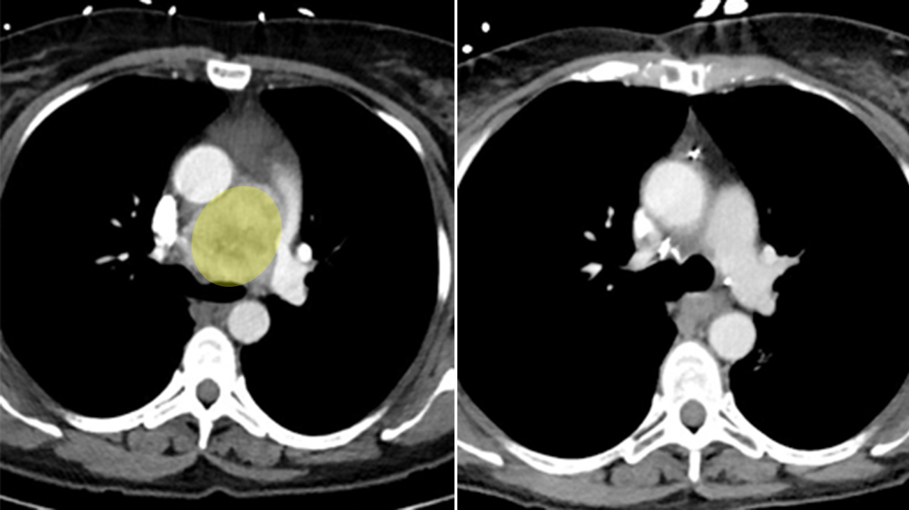 The tumor was the size of a tennis ball before radiation (left). Even though the treatment shrunk the tumor (right), doctors still needed to complete surgery. (Courtesy: Cleveland Clinic)