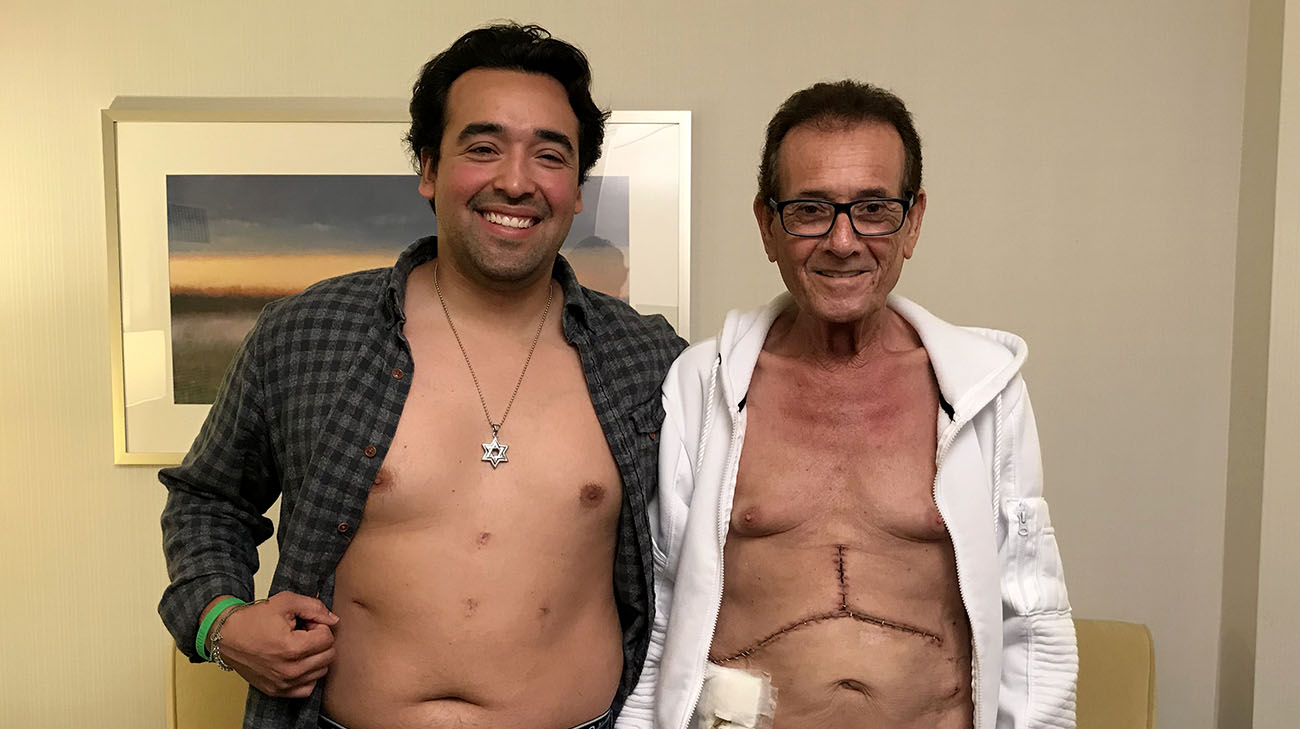 With the laparoscopic donor surgery, Nikko has four small incisions on his abdomen. (Courtesy: Cleveland Clinic)