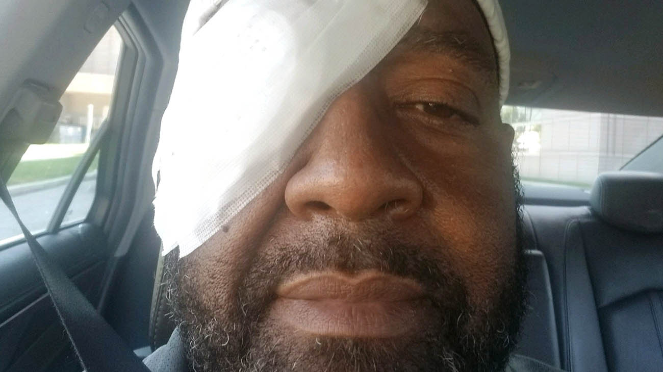 Mark after his eye surgery at Cleveland Clinic for diabetic retinopathy.