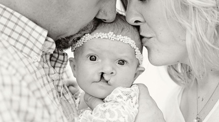 Charlotte gets kisses from her mom and dad. (Courtesy: Ashley Lindeman Photography)