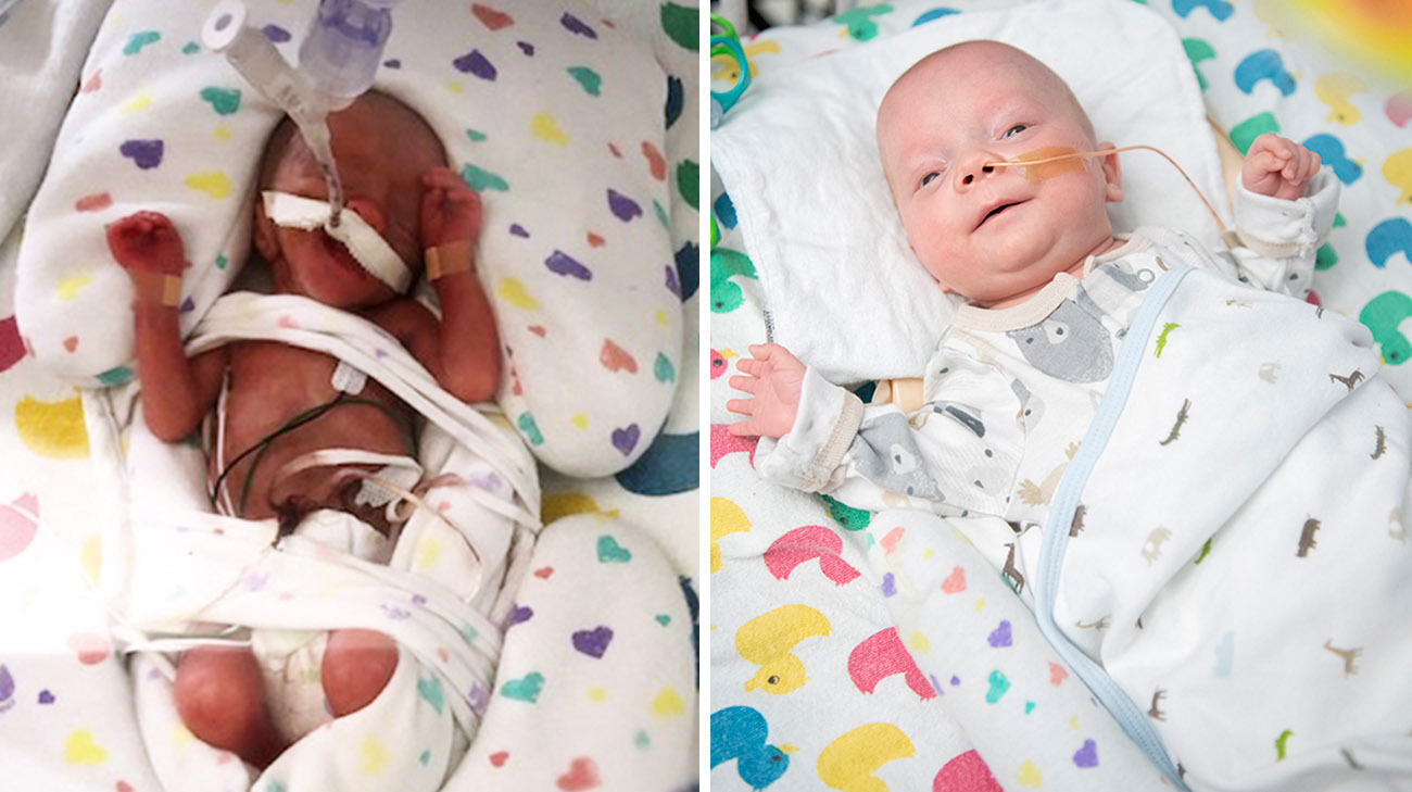 Patrick weighed just over a pound when he was born at 24 weeks and 3 days gestation. (Courtesy: Meghan LaFraniere and Cleveland Clinic)