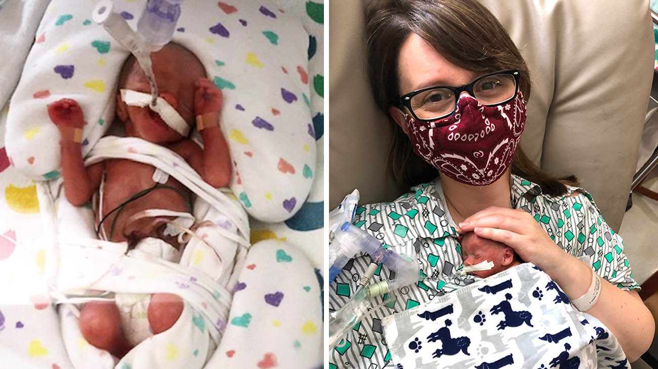 Patrick was on a ventilator during his first days in the NICU, while his lungs continued to develop. (Courtesy: Patrick LaFraniere)(Courtesy