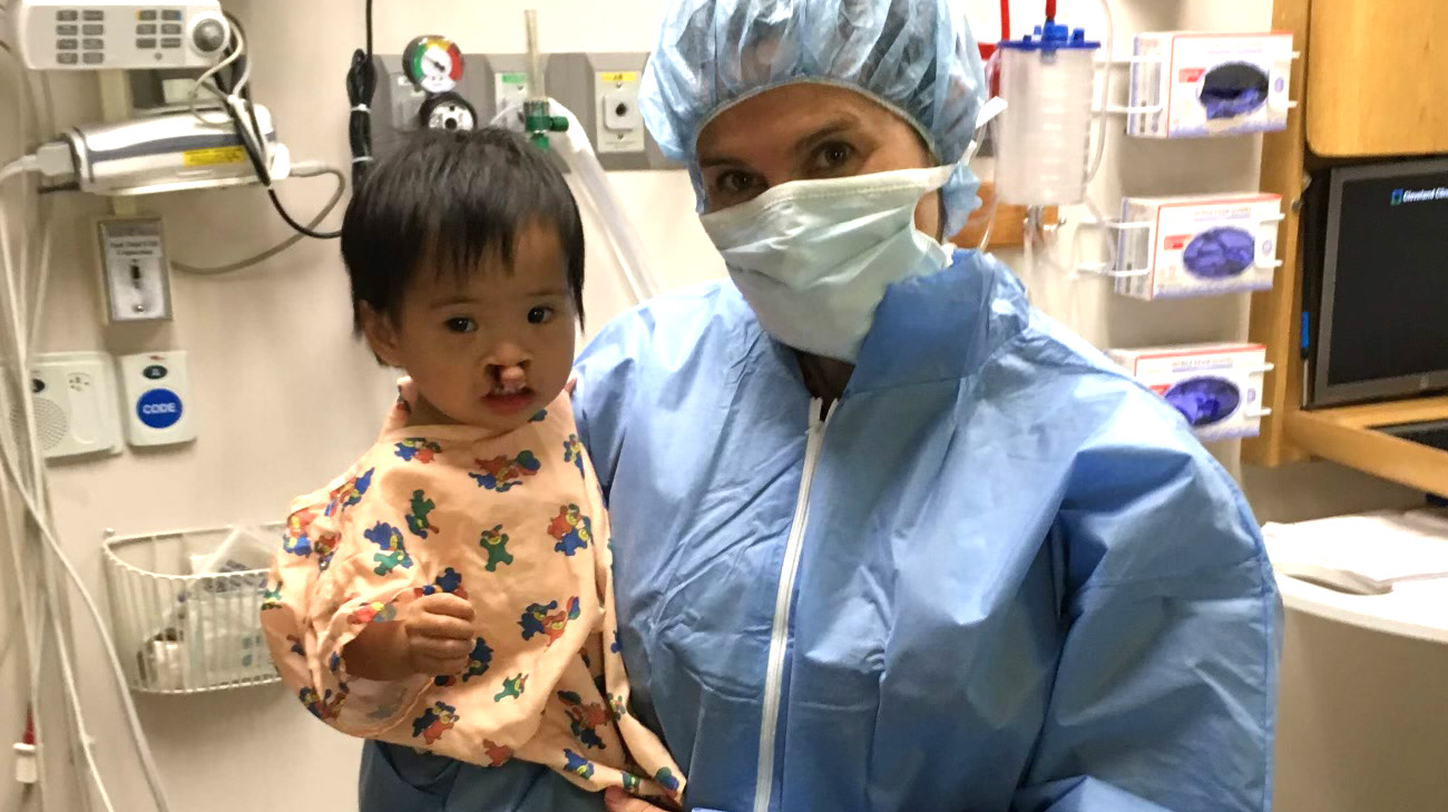 Dr. Bassiri-Gharb was able to modify the bilateral cleft lip and palate repair to achieve life-changing results.