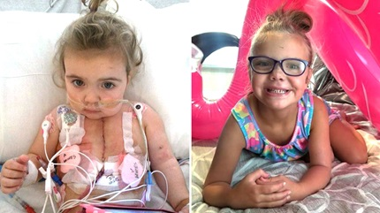 Alivia underwent a heart transplant after doctors diagnosed her with aortic coarctation.