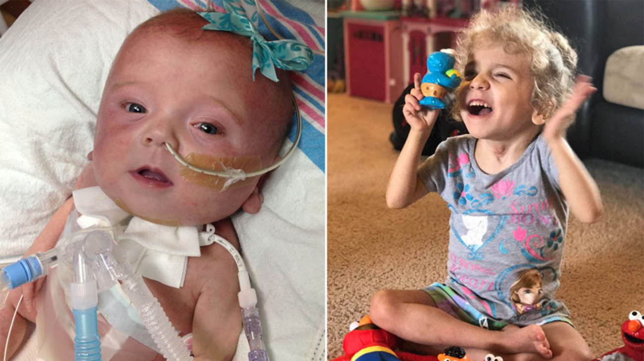 Jacoby Arnold was born with a life-threatening condition called hydrops fetalis.