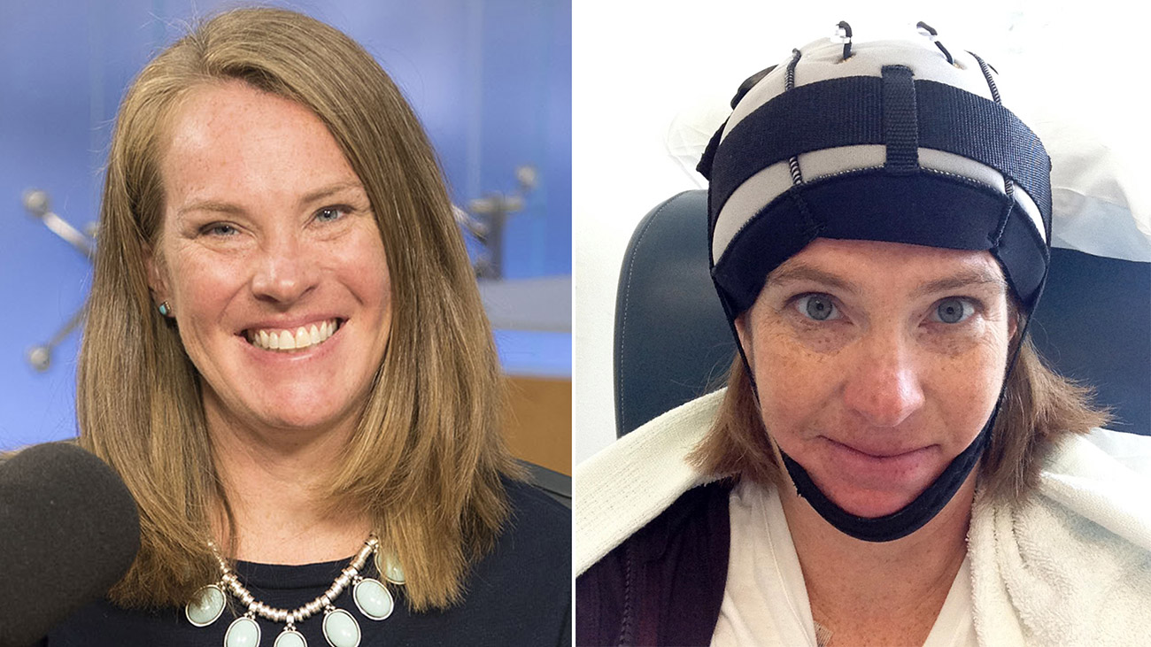Cooling Cap Helps Mom Go Through Chemotherapy Without Losing Hair