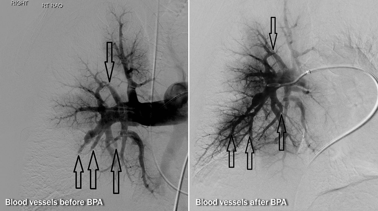 Peggy's pulmonary angiogram: Left image demonstrates blocked vessels with no blood flow past the arrows. Right image shows improved blood flow (after BPA) past the arrows, indicating better blood circulation in the lungs. (Courtesy: Cleveland Clinic)