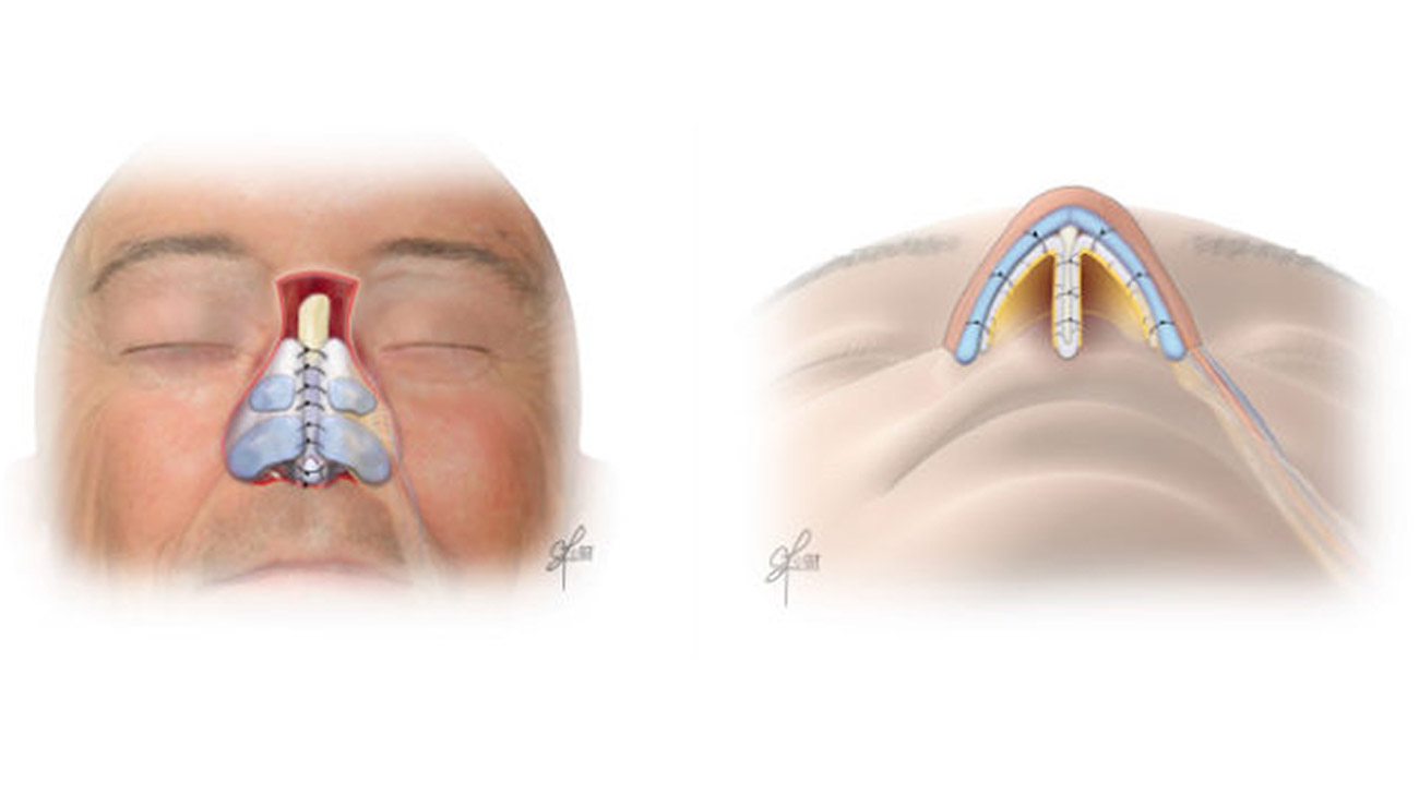 Cleveland Clinic doctors built the new structure for Jerry's nose using bone and cartilage taken from his rib and ear, wrapping those with tissue called fascia lata. They then used a flap of skin from his forehead to provide a new surface for the nose. (Courtesy: Cleveland Clinic)