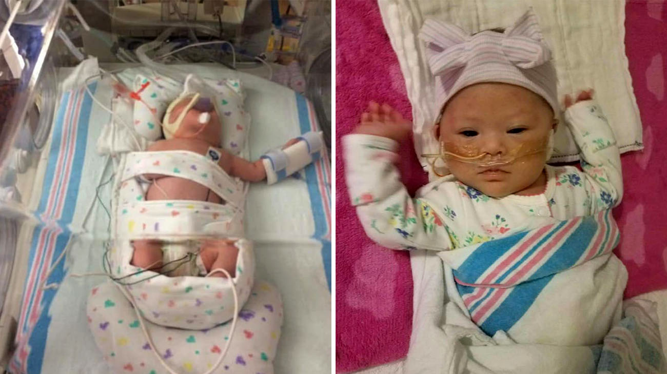 Grace was born prematurely, at 33 weeks, on October 24, 2016. (Courtesy: Valerie Rosian)