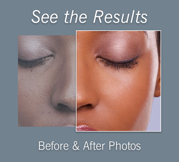 Before and After Photos | Cosmetic & Plastic Sugery