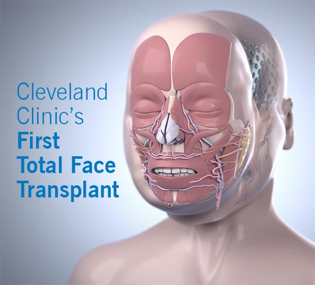 first-total-face-transplant