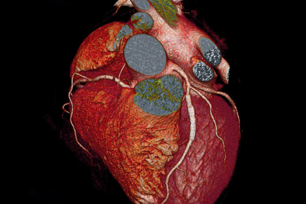 C5Research Cardiovascular Imaging | Cleveland Clinic